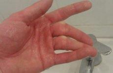Перелом безіменного пальця: особливості, характерні симптоми і способи ефективного відновлення цілісності