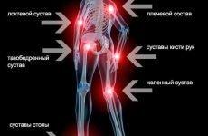 6 способів впоратися з болем у суглобах у зимовий час