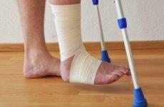 Розробка ноги після перелому гомілки: основні рекомендації