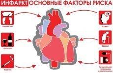 Інфаркт задньої стінки серця: наслідки, лікування та реабілітація