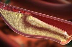 Діагностика оклюзії: як розпізнати тромб у судинах
