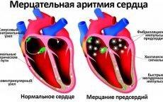 Ліки від аритмії і тахікардії: список препаратів