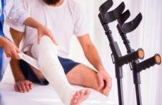 Які переломи ноги бувають симптоми різних видів травм