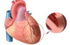 Ознаки і терапія субэпикардиальной ішемії міокарда