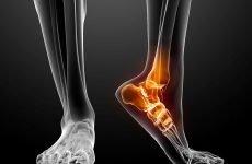 За якими ознаками можна розпізнати перелом клиноподібної кістки стопи, чому він відбувається і методи його лікування