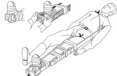 Транспортна шина для фіксації перелому стегна — види, способи накладення