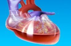 Що таке тампонада серця