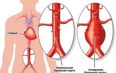 Аневризма черевної аорти: що це таке, симптоми і лікування
