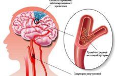 Чому може виникнути тромб в голові і наскільки це небезпечно?