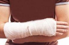 Чому болить рука після перелому лучезапястной кістки: причини