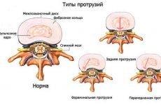 Що таке грижа диска: симптоми, наслідки, лікування