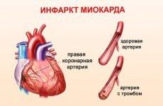 Трансмуральний інфаркт міокарда нижньої передньої стінки