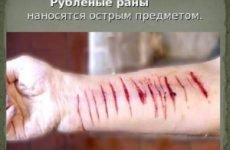 Перша допомога при рубаних ранах: ознаки травми, як обробити рану і чим лікувати