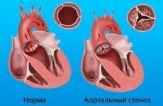 Операція при пороці серця