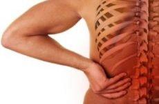 Зміщення хребців поперекового відділу: як лікувати гімнастикою, симптоми, вправи, операція