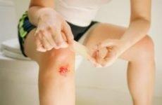 Перша допомога при забитих ранах: порядок дій, обробка забиття та лікування пошкодження мазями і гелями