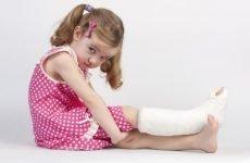 Перелом ноги у дитини – симптоми, діагностика, лікування