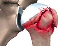 Вколочений перелом шийки плеча: причини і симптоматика, особливості діагностики та способи лікування
