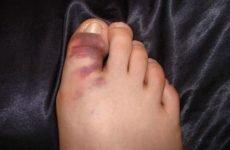 Симптоми перелому пальця на нозі: причини та класифікація, виражені ознаки та діагностика, перша допомога, способи лікування і реабілітація