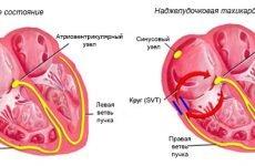 Основні причини, методи діагностики і лікування надшлуночкової тахікардії