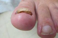 Видалення нігтя на нозі при грибку: пластиром, лазером та іншими засобами