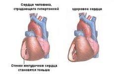 Високий серцевий тиск: як знизити ліками, що приймати, таблетки і препарати