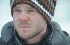 Обмороження обличчя: що робити після відмороження і як захистити шкіру від холоду