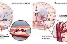 Чим відрізняється інсульт від інфаркту головного мозку: основні ознаки і відмінності
