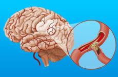 Симптоми і лікування дистонії судин головного мозку