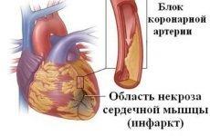 Скільки днів лежать в лікарні після інфаркту міокарда: термін лікарняного