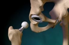 Заміна тазостегнового суглоба: реабілітація після операції і її терміни