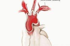Неспецифічний аортоартериит або Хвороба Такаясу