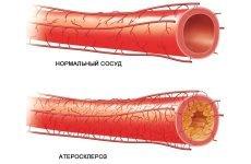 Що таке атеросклероз брахиоцефальных артерій?