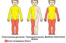 Як точно виявити у дітей до року ознаки ДЦП