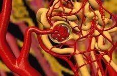 Особливості діагностики та лікування нефрогенної гіпертонії