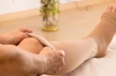 Варикозна екзема на ногах: причини і лікування. Як і чим лікувати венозну екзему нижніх кінцівок