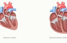 Дилатація камер серця: симптоми, діагностика і лікування