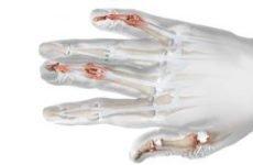 Псоріаз суглобів (ревматоїдний псоріаз): причини, симптоми і лікування