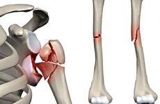 Перелом плечової кістки зі зміщенням: лікування та реабілітація після травми