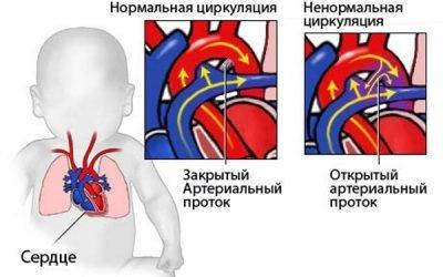 Скільки живуть люди з пороком серця: вродженим або набутим