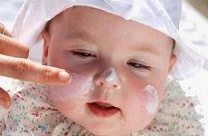 Мазі і креми при атопічному дерматиті у дітей