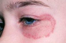 Лишай на оці: причини, симптоми і лікування