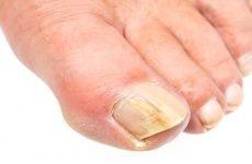 Лікування дріжджового грибка нігтів рук і ніг