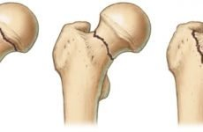 Як лікувати перелом шийки стегна: ефективні способи в сучасній медицині