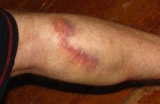 Варикоз внутрішніх вен на ногах — як діагностувати і вилікувати захворювання