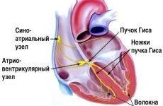 Небезпеки блокади ніжки пучка Гіса для здоров'я людини