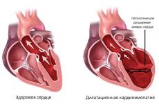 Дилатаційна кардіоміопатія: варіанти патології, діагностика, лікування та прогноз для життя