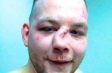 Як лікувати перелом носа: перша допомога, консервативна і оперативна терапія