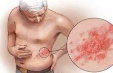 Оперізувальний лишай у літніх: причини, лікування, наслідки та ускладнення