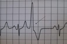 Причини, ознаки і лікування трігемінія серця